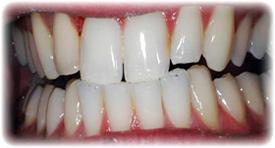 blanchiment des dents dentiste paris 14 75014 esth tique dentaire dr denis cattan situ. Black Bedroom Furniture Sets. Home Design Ideas